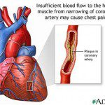 اسباب و اعراض ارتفاع الكولسترول