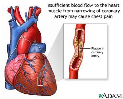 اسباب اعراض ارتفاع الكولسترول cholesterol3.jpg
