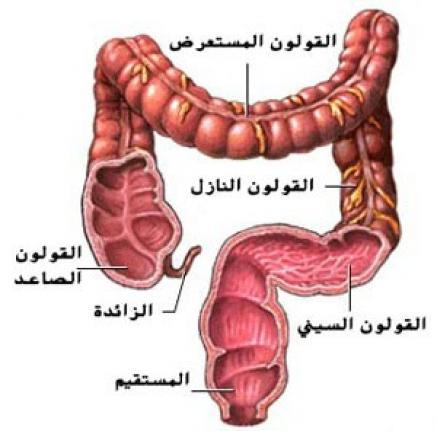 أسباب ألتهابات القولون وأعراضه وطرق علاجه