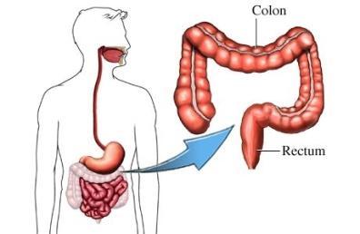اعراض و انواع امراض القولون و علاجها