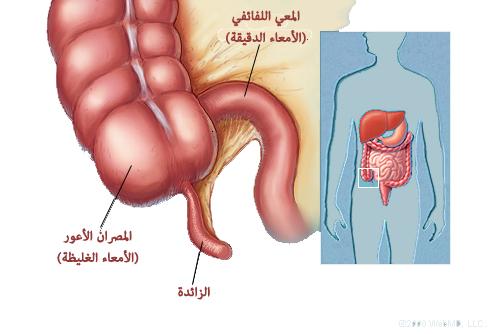 أنواع أمراض القولون وأعراضه