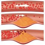 Cholesterol16122012Wd-300x300 - 17076