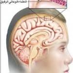 اسباب و اعراض التهاب السحايا الفطرية