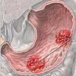 اسباب و علاج قرحة المعدة