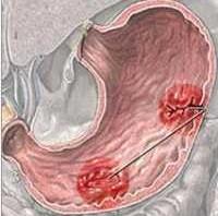 طريقة قويه وفعالة لعلاج قرحة المعدة