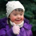 اعراض طفل الداون ( المنغولية )