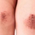 اسباب وعلاج الجروح السطحية