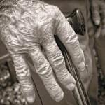 اسباب وعلاج التهاب المفاصل