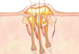 اعراض وعلاج الدمامل