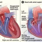 علاج ثقب القلب عند الاطفال
