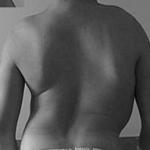 مرض العظم الرخامي