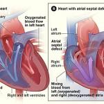 اعراض ثقب القلب