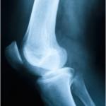 اسباب وعلاج ألم الركبة
