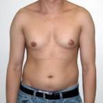 اسباب وعلاج ثدي الرجل