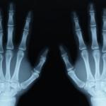 X-ray - 118108