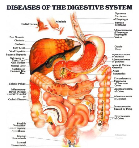 an overview of the human digestive disorder Digestive diseases: introduction any condition that involves the digestive tract the conditions may range from benign to serious some examples include duodenal ulcer, esophageal achalasia, fecal incontinence, whipple disease and dysentery.