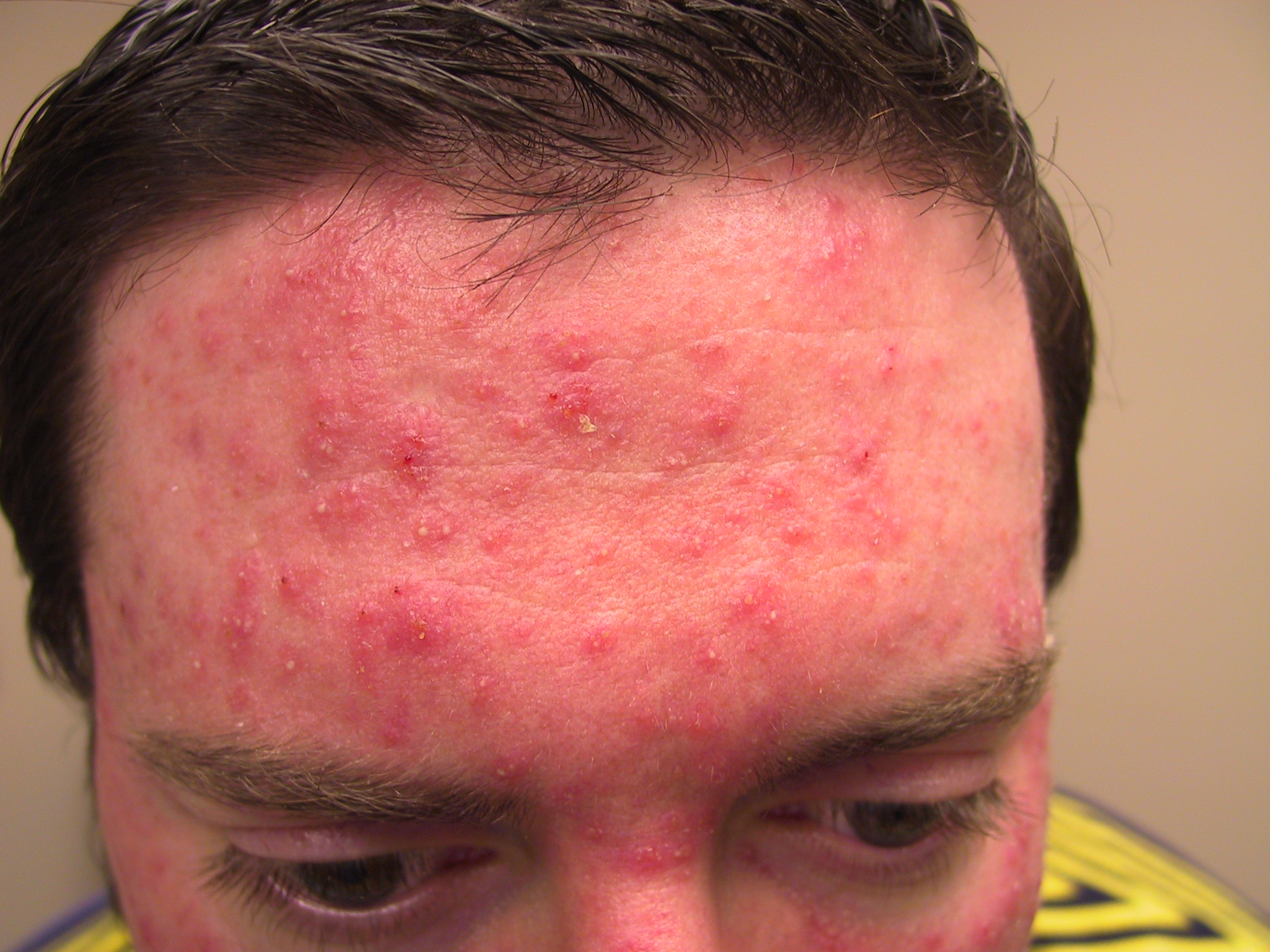 steroid induced rosacea accutane effect