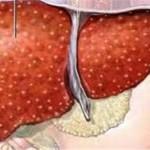 كيف يصوم مريض الكبد والكوليسترول والسكري
