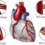 اسباب ارتفاع التريغليسيريد ( الدهون الثلاثية ) وخطرها على القلب