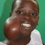 سرطان الغدد الليمفاوية عند الاطفال - 143047