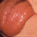 اعراض نقص فيتامين B12 على اللسان