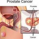 أحدث الدراسات والأبحاث الطبية عن سرطان البروستاتا