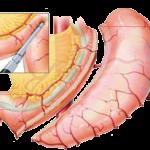 sleeve gastrectomy cost - HD2048×1536