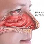 هل حساسية الانف تسبب ضيق التنفس