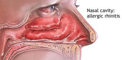 مرض الحساسية اسبابه اعراضه وانواعه وعلاجه allergic-rhinitis-40
