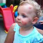 علاج لدغة البعوض للاطفال Mosquito-Bites-On-Face-150x150