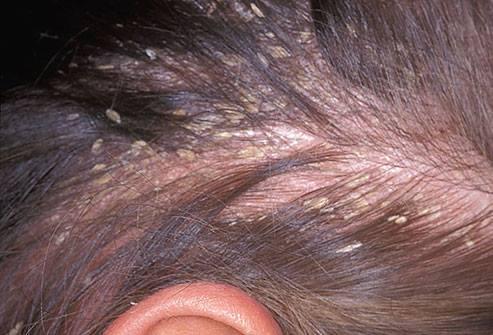 زيت إكليل الجبل لعلاج الشعر