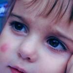 علاج لدغة البعوض للاطفال What-should-be-applied-on-babys-mosquito-bites-150x150
