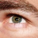 الحساسية حول العين
