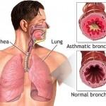 أعراض حساسية الصدر وعلاجها