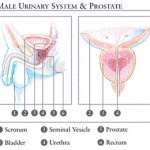 Chronic Bacterial Prostatitis - 189397