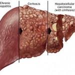 هل ينتقل التهاب الكبد c عن طريق اللعاب