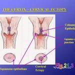 ماهي عملية كي عنق الرحم