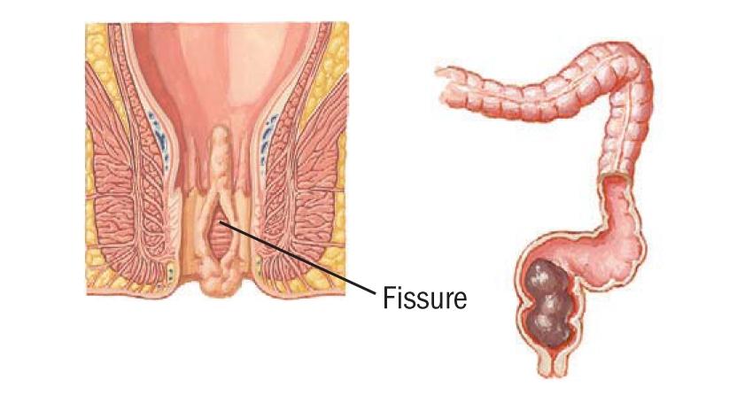 Отличия геморроя от простатита водка и простатита