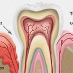 وصفات طبيعية لعلاج امراض اللثة