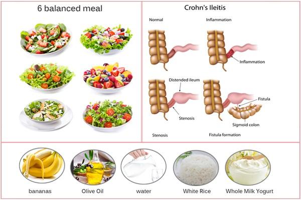 نظام غذائي صحي لمرضى كرون المرسال