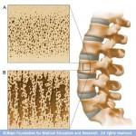 أسباب أمراض ترقق العظام