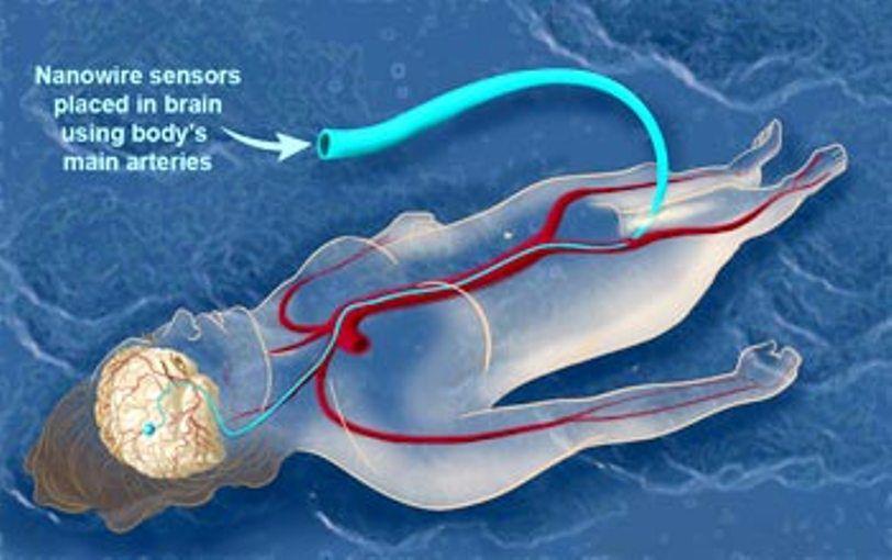 استخدام الحلقة المهبلية الداعمة أو الفرزجة المانعة التي تستخدم لدعم المثانة  و المساهمة في علاج سلس