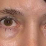 انتفاخ العيون - 247352