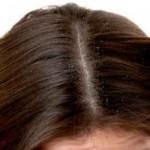 نصائح لعلاج فروة الرأس الدهنية