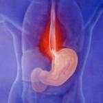 اسباب وعلاج الحموضة اثناء الحمل