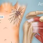 اسباب و علاج حساسية الابط