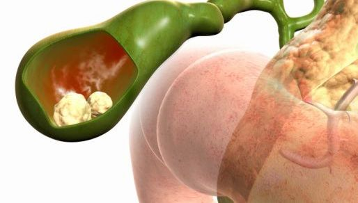 اعراض و اسباب التهاب المرارة بالتفاصيل المرسال