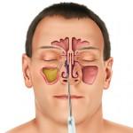 اسباب التهاب الجيوب الانفية واهم طرق الوقاية