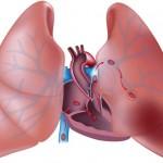 اعراض و اسباب جلطة الرئة