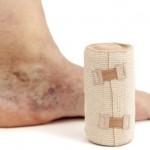 العلاجات المنزلية لـ الدوالي الوريدية